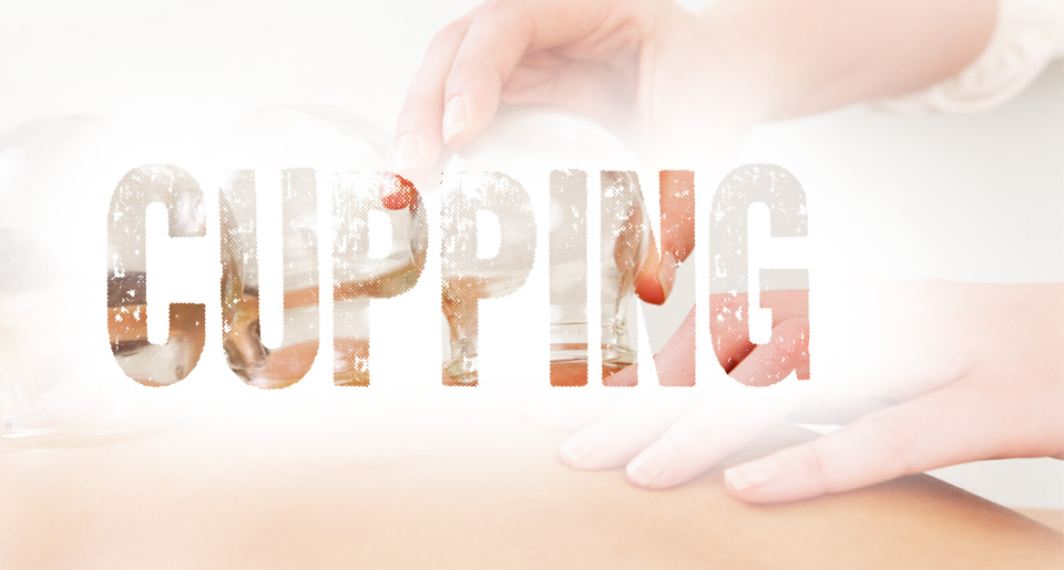 cupping acupuncture cary nc