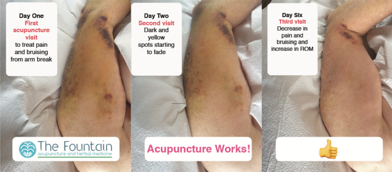 Decreased arm bruising from break after two treatments