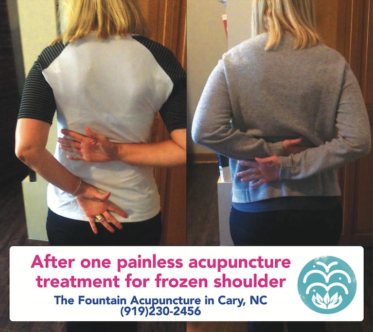 Drastic shoulder range of motion improvement after one treatment